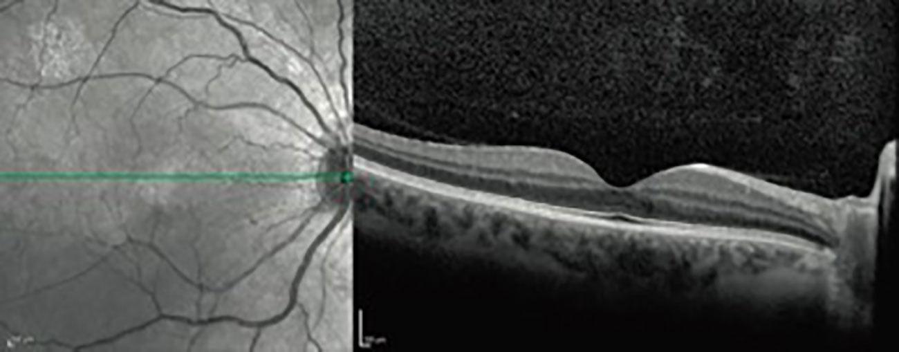 OCT - Optische Cohärenz-Tomographie